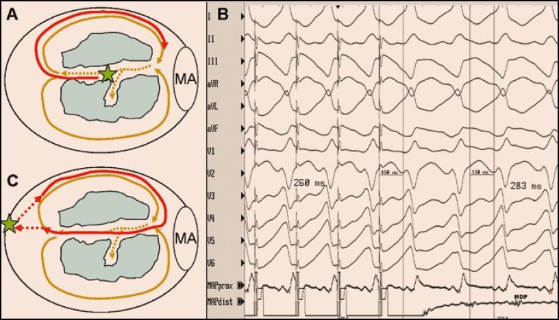<b>Entrainment (neboli volně česky přeloženo najetí do tachykardie) je stimulační manévr, který prokazuje, že stimulovaná část myokardu je lokalizována na reentry okruhu.</b> Při entrainmentu se stimuluje jen lehce rychleji, než je frekvence tachykardie, takže se po ukončení stimulace tachykardie neukončí, ale pokračuje dál. Stimuluje-li se do místa ležícího na reentry okruhu, je interval mezi posledním stimulem a následným lokálním potenciálem snímaným v místě stimulace (tzv. poststimulační interval) je shodný s délkou cyklu tachykardie. Pokud se navíc při stimulaci objeví stejný QRS komplex jako při KT a interval od stimulu do QRS komplexu je > 0, znamená to, že se stimuluje přímo v tzv. oblasti pomalého vedení sevřené ze dvou stran bariérami výstupní blokády (např. dvěma jizvami). Tato situace je znázorněna na obrázku A, kde je schématicky zobrazena levá komora s mitrálním anulem (MA) a dvěma kompaktními jizvami (modré zóny). Hnědými šipkami je znázorněn dvojitý reentry okruh se společnou oblastí pomalého vedení označenou tečkovaně. Zelená hvězda označuje místo stimulace, která aktivuje reentry okruhu dříve, než je plně oběhnut (červená šipka). Tvar QRS komplexu při stimulaci je stejný jako při KT a interval od stimulu ke QRS komplexu reprezentuje dobu skrytého vedení oblastí pomalého vedení směrem k výstupu do zdravého myokardu (A,B). Kdyby se stimulovala komora v místě mimo reentry okruh, byl by tvar QRS komplexu odlišný od QRS komplexu při KT a interval od posledního stimulu do první aktivace v místě stimulace by byl delší než je délka cyklu KT v zásadě o součet aktivačních časů mezi reentry okruhem a místem stimulace (C). Tzn. čím dále se stimuluje od reentry okruhu, tím více se tzv. poststimulační interval liší od délky cyklu tachykardie.