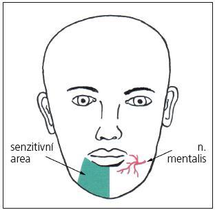 Schéma výstupu n. mentalis a area senzitivní inervace.