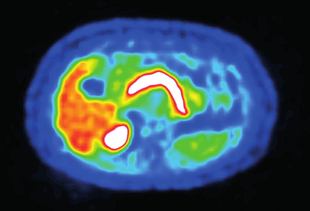 PET/CT Fig. 3: PET/CT
