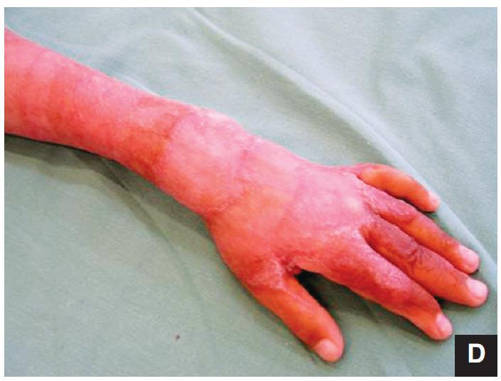 2. etapa – transplantace DE štěpem 2 a: Snesení silikonové fólie 2 b: Oživení povrchu neodermis kartáčkem 2 c: Přiložení tenkého DE štěpu 2 d: Přihojení transplantátu (po dvou týdnech)