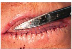 """Sutura rány po celkové excizi retní červeně (""""lip shaving"""") dolního rtu"""