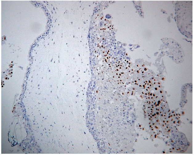 Expresia 57 v kompletnej hydatidóznej mole. Imunohistochemická reakcia s monoklonálnou protilátkou p57 (57P06). Silná jadrová pozitivita extravilózneho trofoblastu, negativita vilózneho cytotrofoblastu a stromálnych buniek klkov. Vizualizácia DAB (zväčšenie 200x).