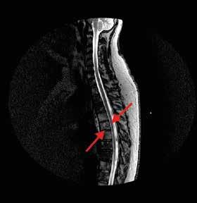 MRI hrudní páteře, sagitální řez.