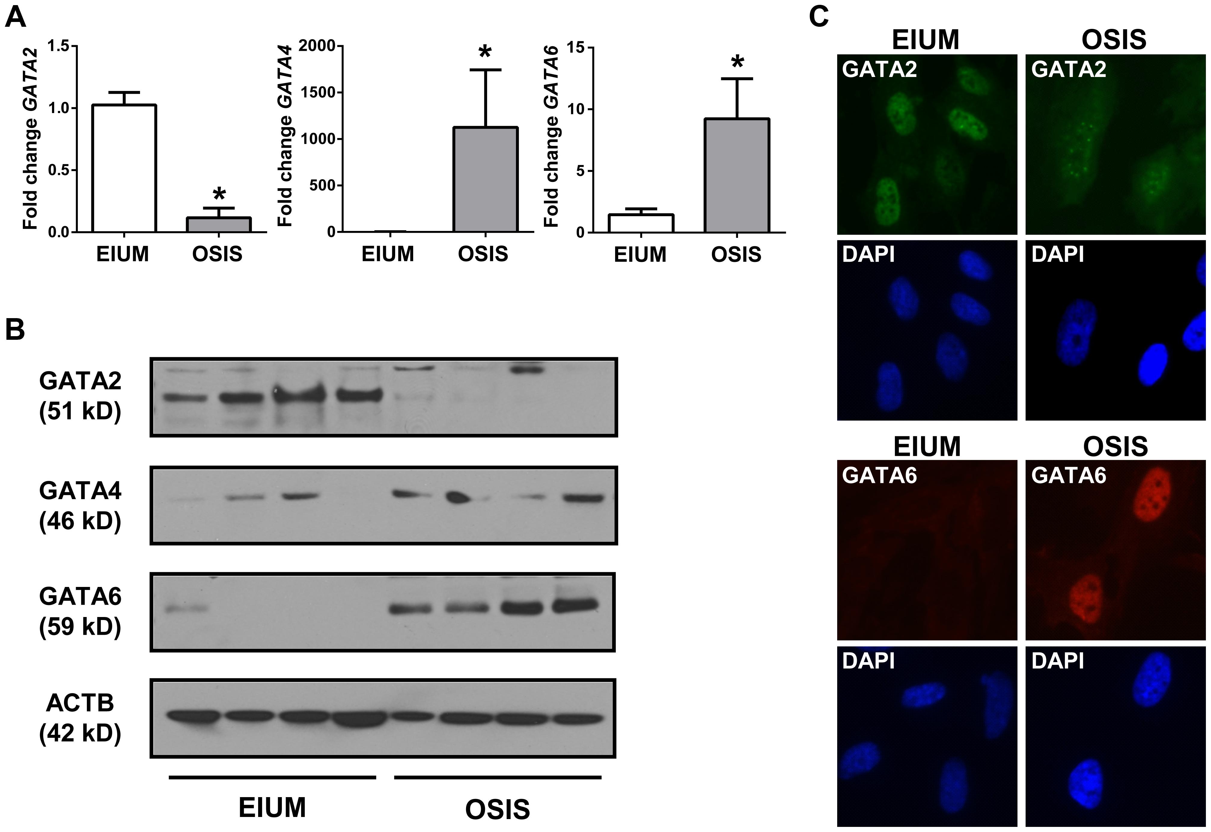 GATA isoform expression in stromal cells.
