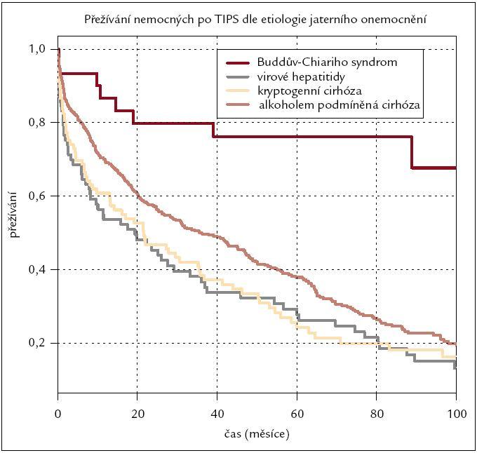 Kaplan-Meierova křivka přežívání nemocných po výkonu rozdělených dle etiologie jaterního onemocnění.