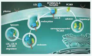 PCSK9 reguluje expresi jaterních LDL