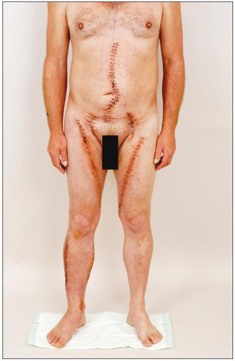 Pacient 3 týdny po explantaci infikované aorto-bifemorální cévní protézy a in situ rekonstrukci pomocí štěpů z autologních femorálních vén. Všechny operační rány se zhojily per primam, nejsou známky otoku dolních končetin po oboustranném odběru vena femoralis superficialis Fig. 8. Patient at 3 weeks after explantation of an infected aorto-bifemoral prosthetic graft and in situ  reconstruction with autogenous femoral vein grafts. All surgical wounds have healed by first intention; neither lower extremity shows any sign of oedema following harvest of the superficial femoral vein
