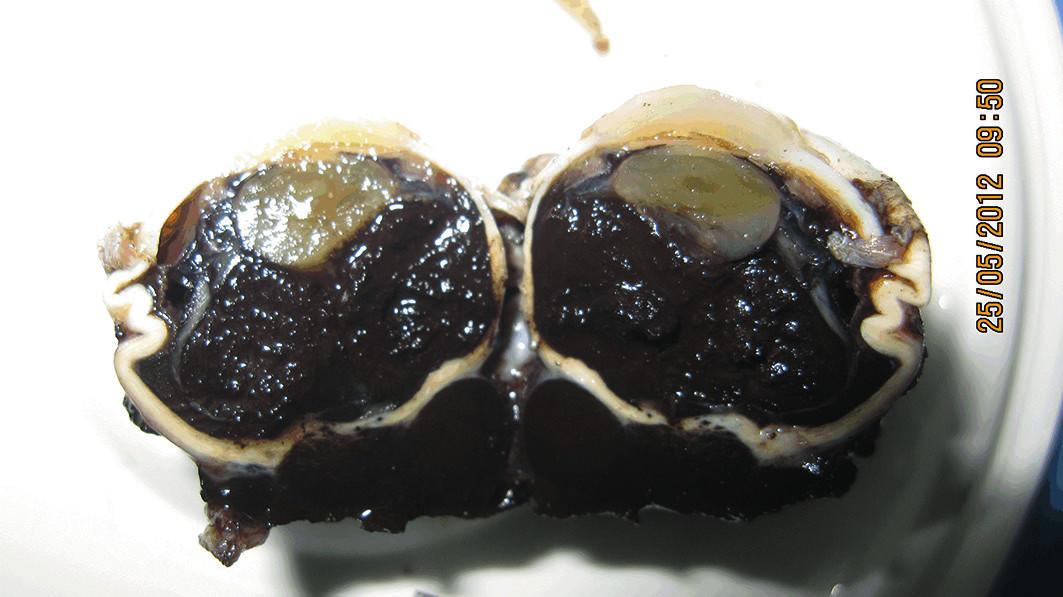 Rez enukleovanej očnej gule – nádor prerastá retrobulbárne