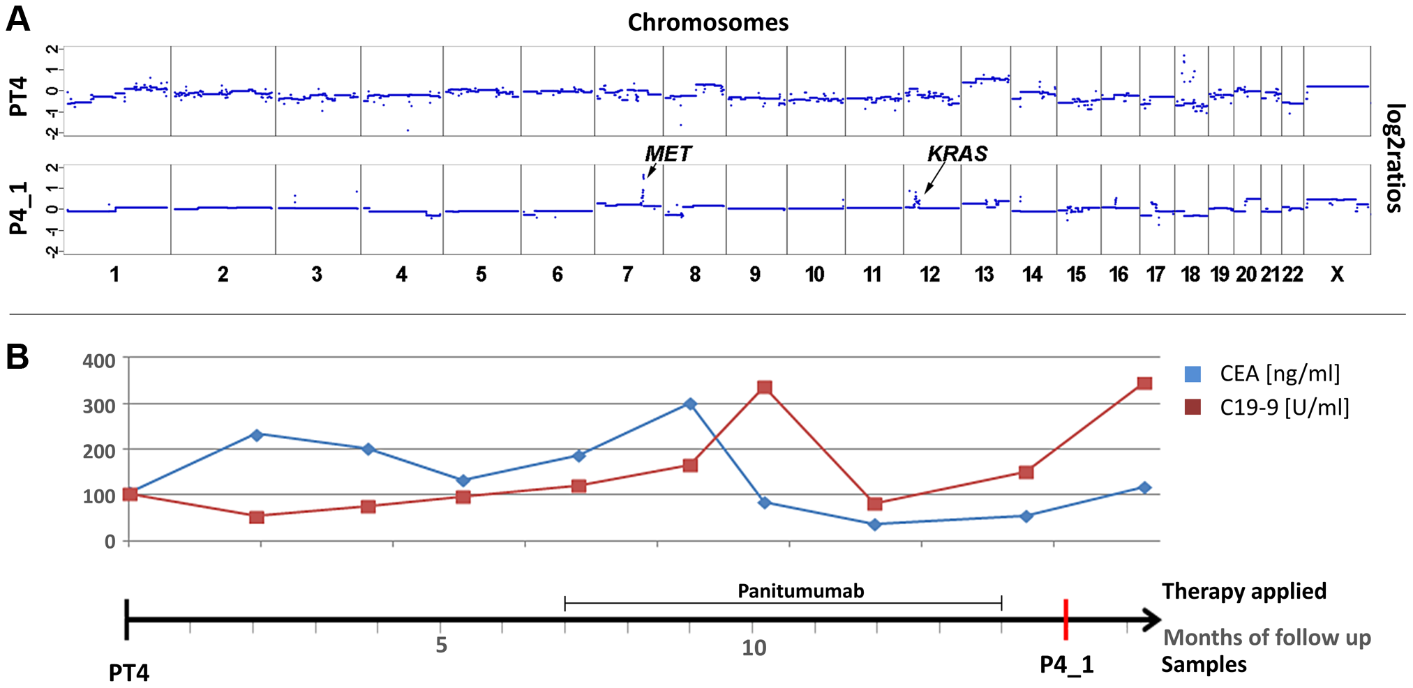 Co-occurrence of amplifications of the <i>KRAS</i> and <i>MET</i> genes observed after 7 months of treatment with panitumumab in patient #4.
