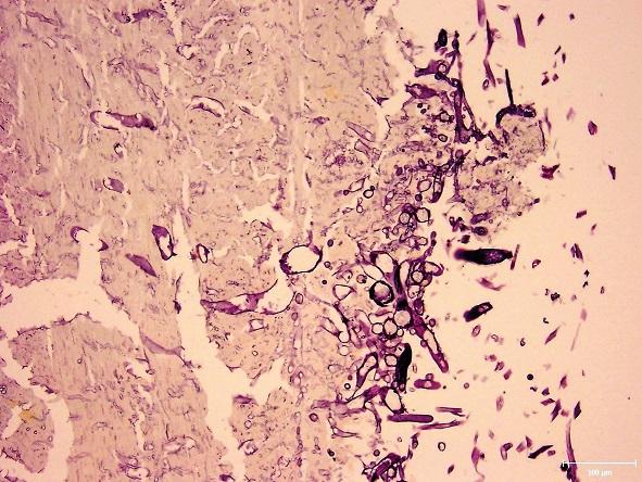 Endokard srdca s pomnoženými plesňami prerastajúcimi do priľahlej svaloviny (Grocott methenamin, zväčšenie 200x).