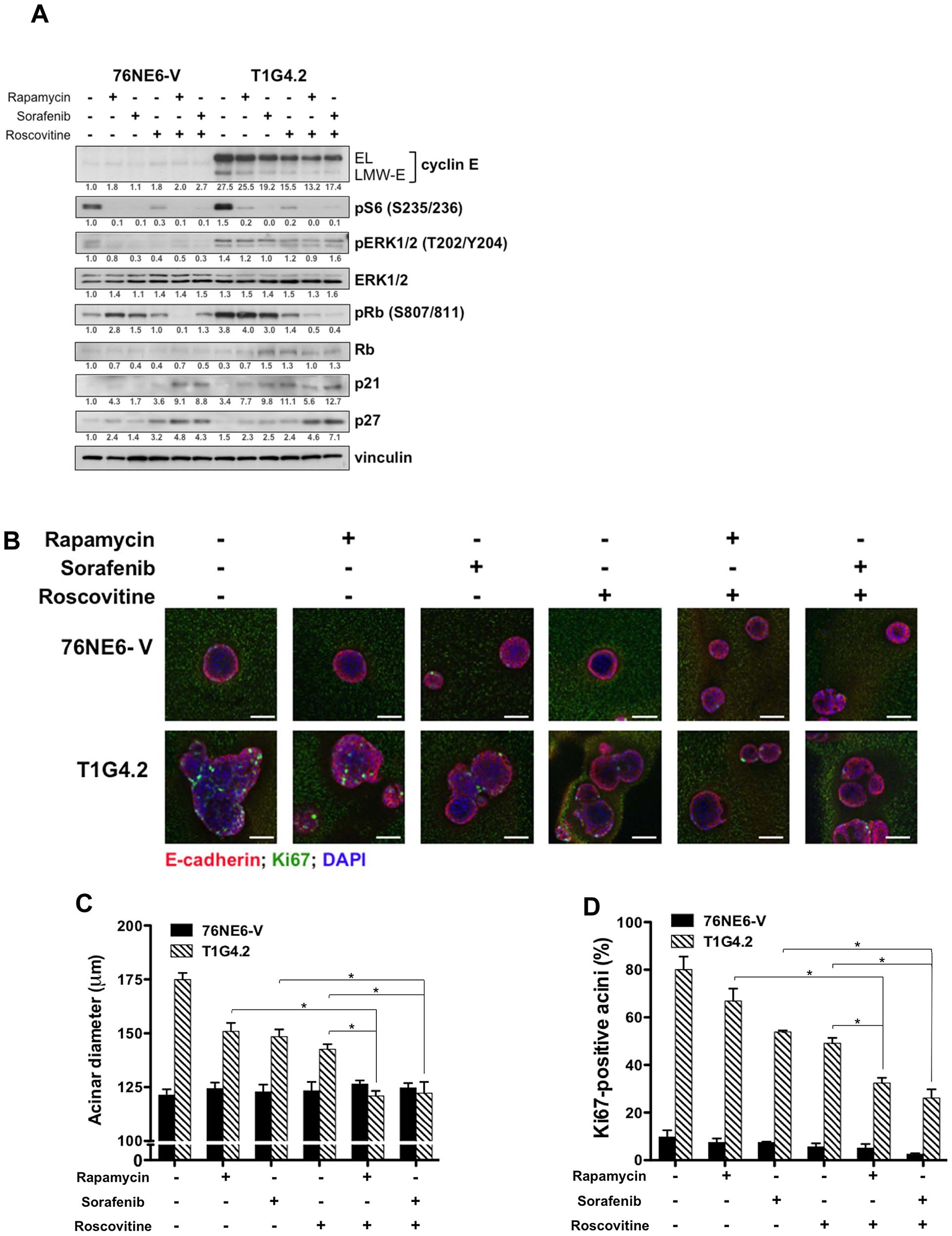 Combination drug treatment prevents induction of aberrant acinar development by LMW-E.