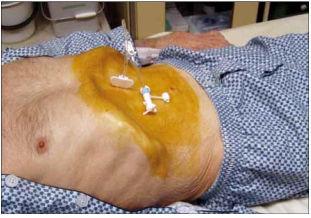 Pacient se sondou PEG.