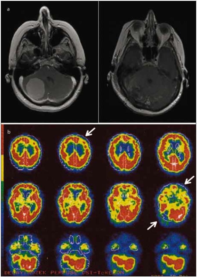 Zobrazení mozku pacientky pomocí MR a SPECT. Obr. 1a) Léze způsobená nádorem (meningeom) v pravé mozečkové hemisféře, sekvence T1 s kontrastem před (vlevo) a po operaci. Obr. 1b) Výpadek perfuze v zobrazení SPECT v mozečku a ve frontální oblasti kontralaterální k lézi mozečku (označeny šipkami). Vyšetření bylo provedeno po odstranění nádoru, stejně jako neuropsychologické vyšetření. Data jsou zobrazena v pseudobarvách udávajících míru relativní perfuze vyznačenou na škále vlevo. Deficit kognice u pacientů s lézí mozečku lze vysvětlit funkčním napojením mozečku na kontralaterální frontální lalok, což se označuje jako zkřížená cerebro-cerebellární diaschíza.