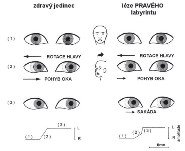Head impulse test (provedení u zdravého jedince – vlevo, u pacienta s pravostrannou periferní vestibulární lézí – vpravo. Zde po skončení pohybu je generována korekční sakáda.