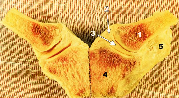 Frontální řez oběma SC klouby. 1 – mediální konec klíčku, 2 – kloubní pouzdro, 3 – discus intraarticularis, 4 – manubrium sterni, 5 – lig. costoclaviculare Fig. 2. Coronal section through both SC joints. 1 – medial end of the clavicle, 2 – joint capsule, 3 – intraarticular disc, 4 – manubrium sterni, 5 – costoclavicular ligament