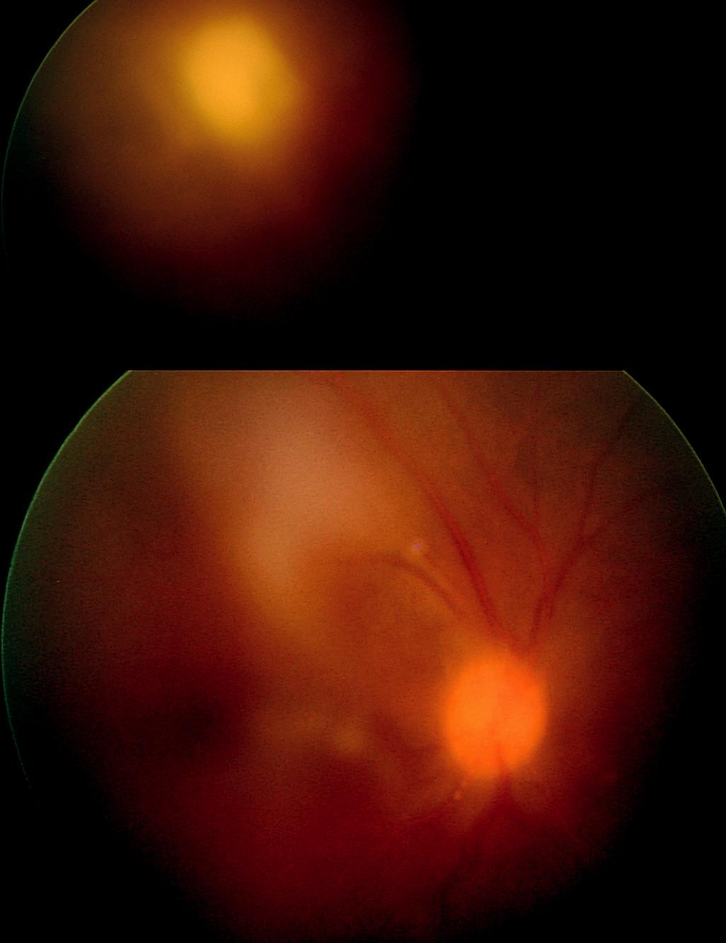 Obr. 11. Periferní fibroproliferace u srpkovité anémie imitující periferní granulom u 24letého pacienta afroamerického původu. a) Na očním pozadí pravého oka je patrné zkalení sklivce, výrazně vinuté temporální arkády a žlutobělavé ložisko v temporálním horním kvadrantu.