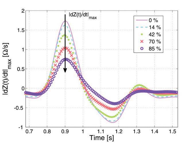 Fig. 5: Temporal derivatives of the simulated impedances with different filling stages of the lung.
