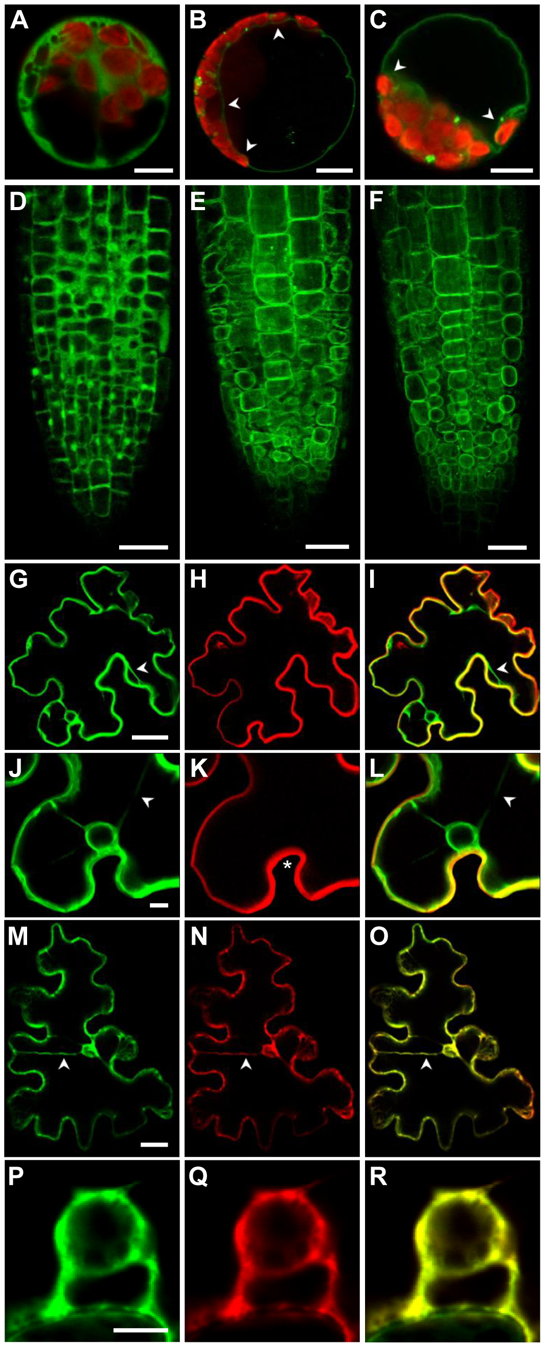 The <i>Arabidopsis</i> ZIF2 transporter localises at the tonoplast.