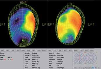 Srovnání funkčních parametrů srdce v klidu a po zátěži. Vlevo po zátěži rozsáhlé ischemie a porucha kinetiky dolní stěny. V klidu se nález normalizuje. Po zátěži dochází k zvětšení objemu a poklesu EF.