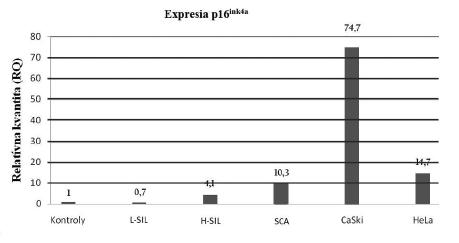 Výsledky expresie p16<sup>ink4a</sup> mRNA transkriptu v skupinách pacientok s rôznou závažnosťou cervikálnej lézie. Metóda relatívnej kvantifikácie určila hladinu expresie p16 mRNA transkriptu v kontrolnej skupine ako RQ=1 (ddCt=0). Ostatné skupiny vzoriek sú porovnané k tejto hodnote, pričom čísla nad stĺpcami grafu udávajú, koľkonásobne je expresia p16<sup>ink4a</sup> zvýšená resp. znížená