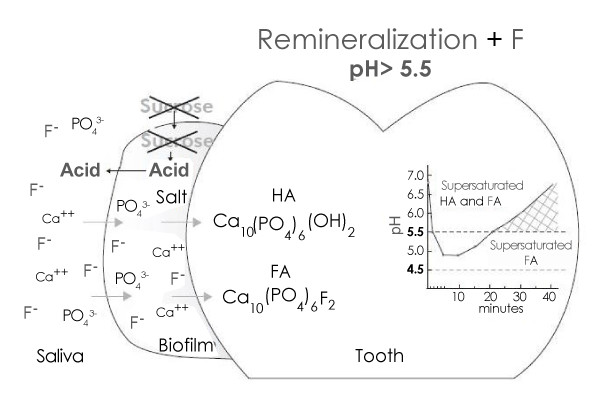 Remineralization by Fluoride (In dental Biofilm)