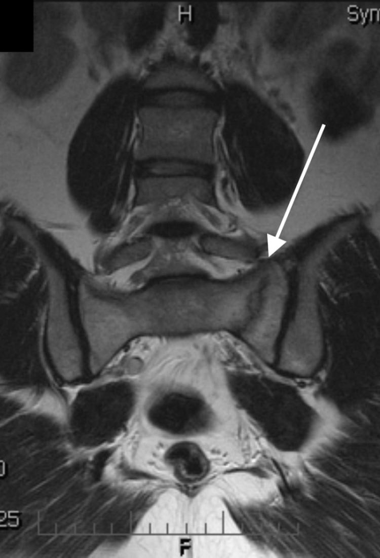 MR vyšetření pánve v sekvenci TSE T2 fs v koronární rovině. V laterální části levé poloviny křížové kosti je patrná lomná linie (šipka ) vertikálně probíhající paralelně se štěrbinou sakroiliakálního kloubu. V okolí lomné linie je patrný rozsáhlý edém kostní dřeně