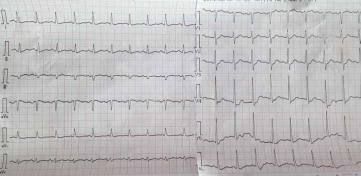 Elektrokardiografický záznam – sinusová tachykardie s naznačenými miskovitými depresemi ST úseku I, aVL, V4–V6.