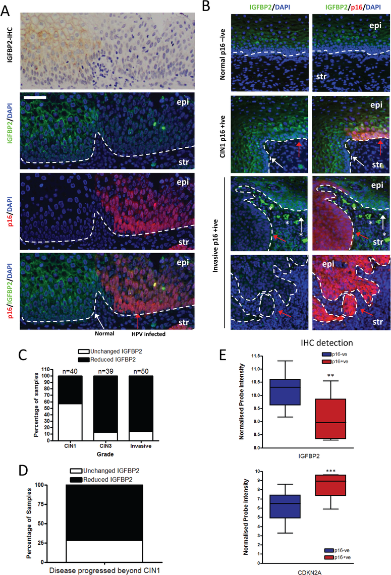IGFBP2 is frequently down regulated in HPV16 infected CIN3 lesions.