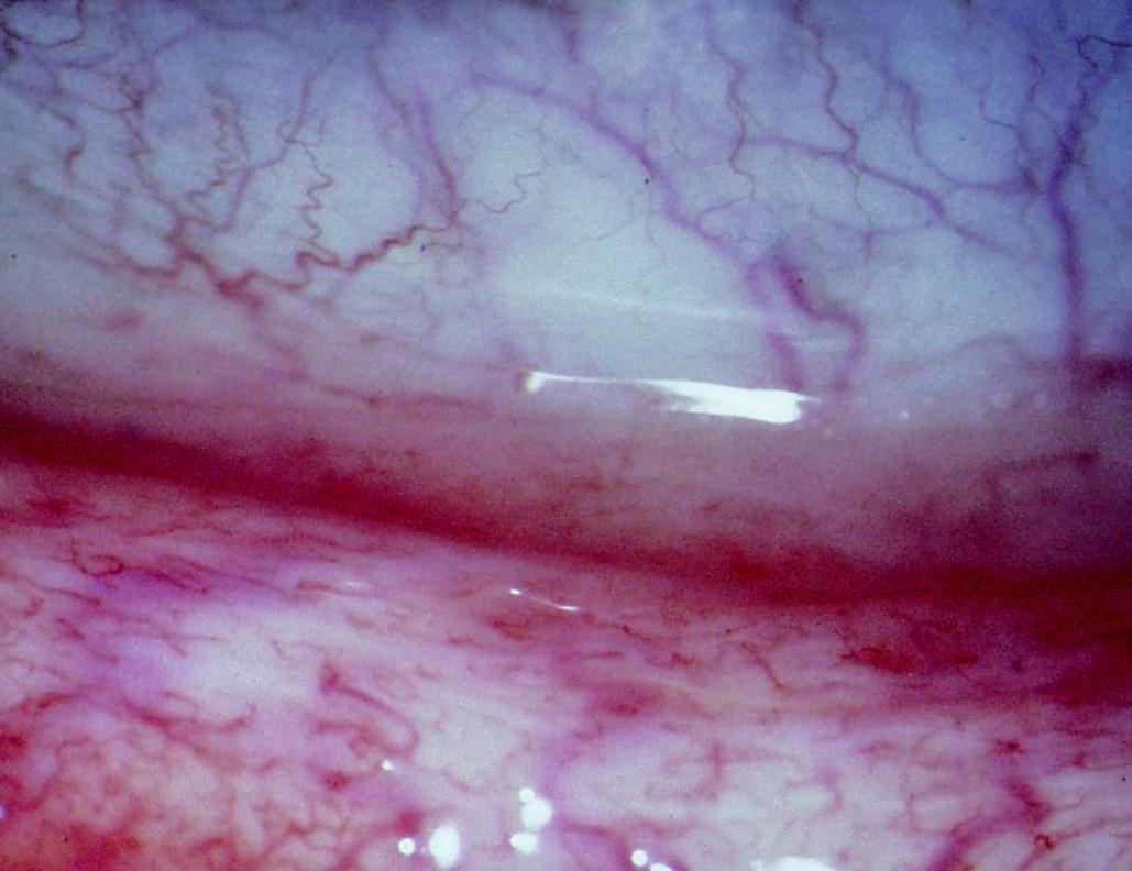 Obr. 1a. Hyperémie, prosáknutí s vinutostí cév dolního fornixu před léčbou Cp