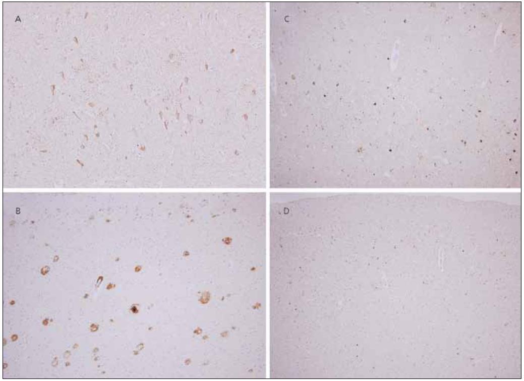 """Neuropatologie. Neuropatologický nález změn typických pro Alzheimerovu nemoc: výrazné postižení parietálního kortexu v rámci AN : četná neurofibrilární klubka pozitivní v imunohistochemické reakci s protilátkou proti hyperfosforylované formě tau proteinu (a) a vysoký počet senilních plak, převážně """"zralého"""" typu, s imunohistochemickou pozitivitou protilátky proti amyloid-ß peptidu (b). Původní zvětšení 200×. Tau inkluze: Značná část inkluzí hyperfosforylovaného tau proteinu v parietální kůře je pozitivních v reakci s protilátkou proti 4R (c), avšak místy je zřetelná převaha 3R pozitivit (d). Změny typické pro CBD chybí. Původní zvětšení 200×."""