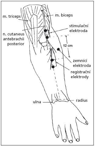 Schéma senzitivní neurografie nervus cutaneus antebrachii posterior [7].