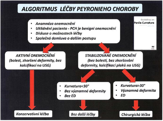 Algoritmus léčby PD (5) Fig. 9 Algorithm of treatment PD (5)