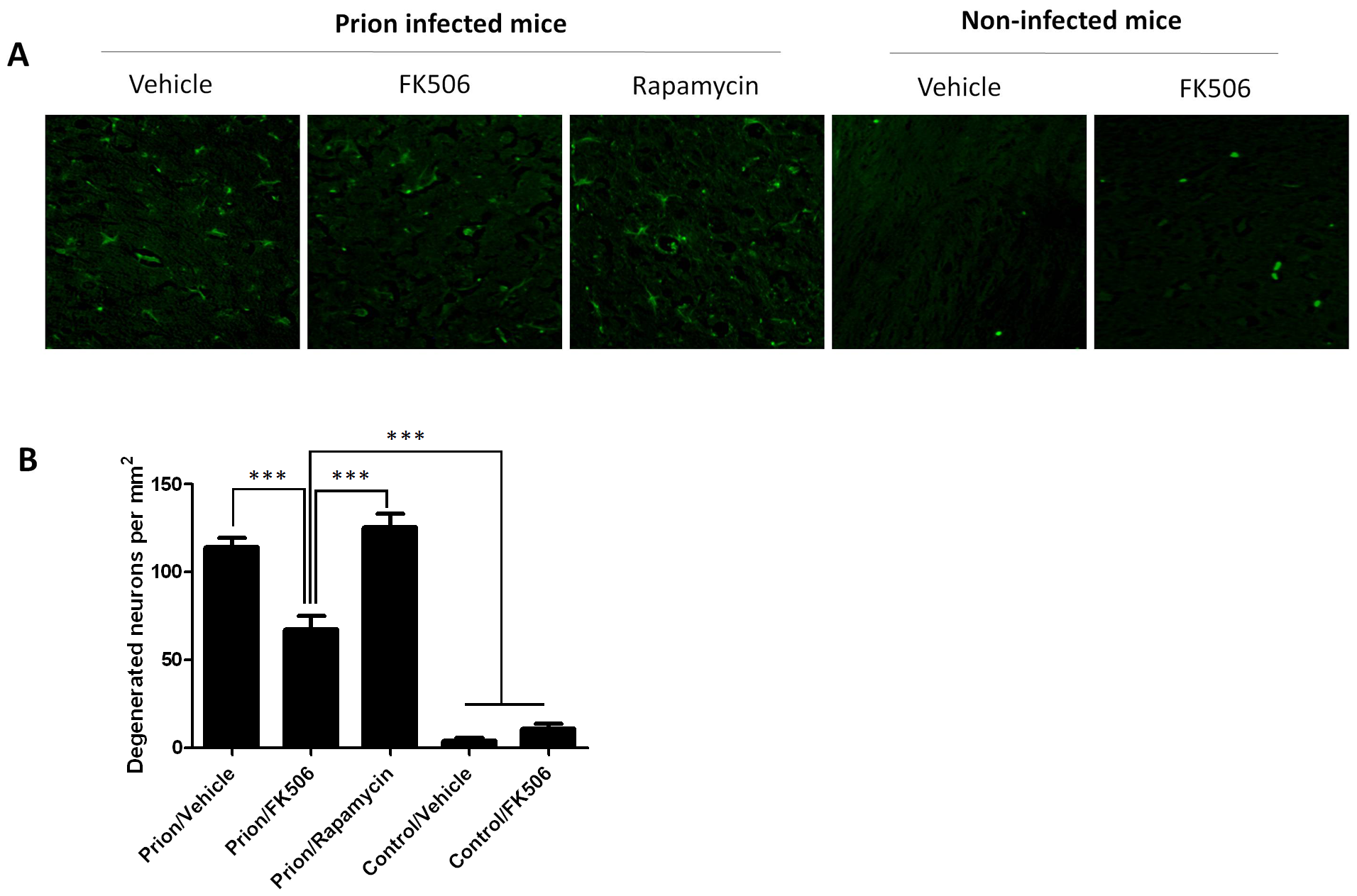 CaN inhibitor reduces neurodegeneration in prion affected animals.