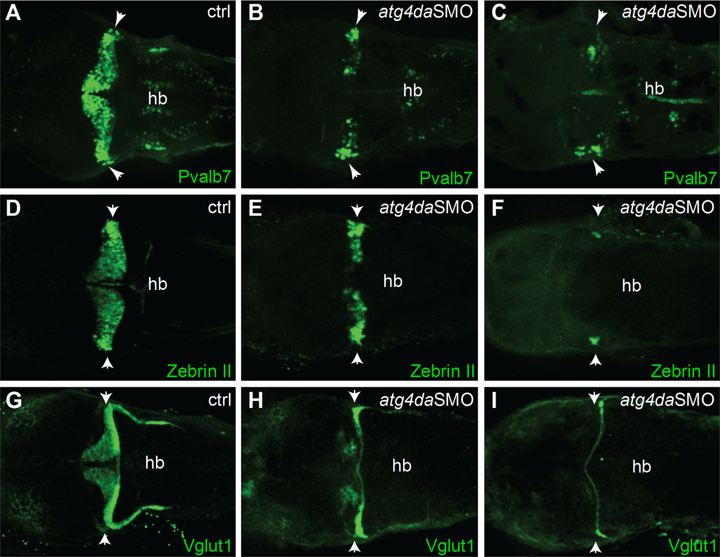 Suppression of <i>atg4da</i> in zebrafish leads to loss of cerebellar neurons.