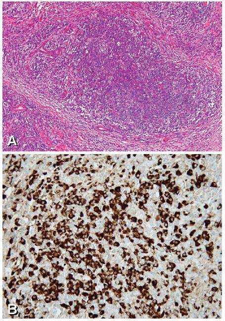 Chronická sklerózující sialoadenitida A. Intenzivní lymfoplazmocelulární zánětlivý infiltrát ve tkáni submandibulární žlázy s těžkou atrofií sekreční komponenty (acinů a tubulů) jsou patrna pouze rezidua intralobulárních vývodů a fibróza ve formě vazivových pruhů (HE, zvětšeno 100×)  B. Pozitivní imunohistochemický průkaz IgG4 ve formě hnědého zabarvení cytoplazmy plazmatických buněk (zvětšeno 400×)
