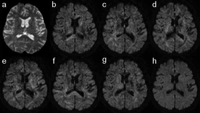 Sada základních dat DTI vyšetření (b– g). Difuzně vážené obrazy mozku s použitím šesti různých směrů přídatného magnetického gradientu (B), což je minimální počet potřebný k rekonstrukci mapy FA a barevné mapy směrové závislosti difuze. V závislosti na orientaci gradientu se mění intenzity signálu v jednotlivých oblastech.  a) B0 obraz nutný k výpočtu ADC mapy; jedná se o prostý T2 vážený obraz bez aplikace přídatného magnetického gradientu. h) Izotropní DWI obraz je průměrem obrazů b– g; spolu s B0 zobrazením slouží k výpočtu ADC mapy.