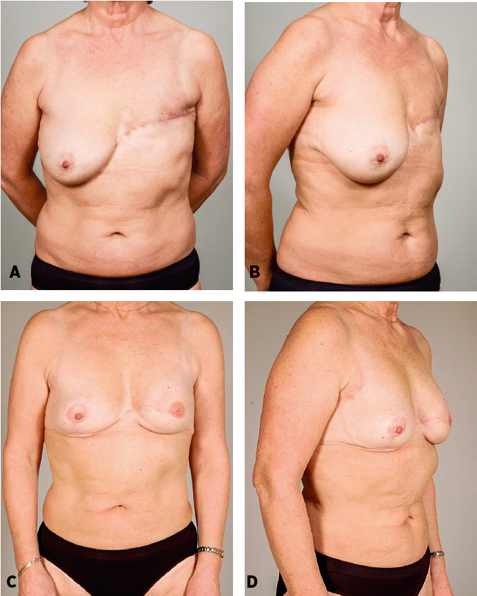 Patient 3: A 53-years-old women 18 mounts after mastectomy and adjuvant radiotherapy. She was not considered a good candidate for a DIEP flap breast reconstruction because she was very thin and a strong smoker. She underwent latissimus dorsi breast reconstruction associated with fat grafting into the pectoralis muscle (50 ml), and with abdominal advancement flap (allowing to reduce the size of the skin paddle and thus the length of the scars on her back). One additional session of lipomodelling (255 ml) was performed to increase breast volume. Preoperative and postoperative frontal and oblique views, follow-up 25 months