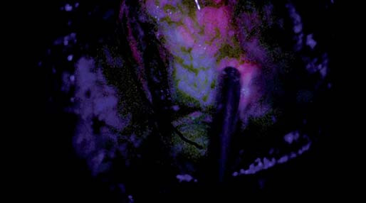 Fotografie zachycující resekční dutinu se slabě růžovou fluorescencí na horním okraji snímku (zóna 2), pod ní je oblast parenchymu již bez viditelné fluorescence (zóna 3). Fig. 5. Snapshots depicting the resection cavity with light pink fluorescence at the upper edge of the image (zone 2), the parenchyma below has no visible fluorescence (zone 3).