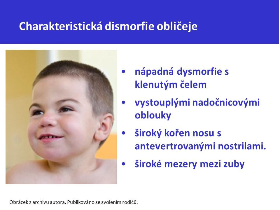 Mukopolysacharidóza typ II – Hunterův syndrom - 8