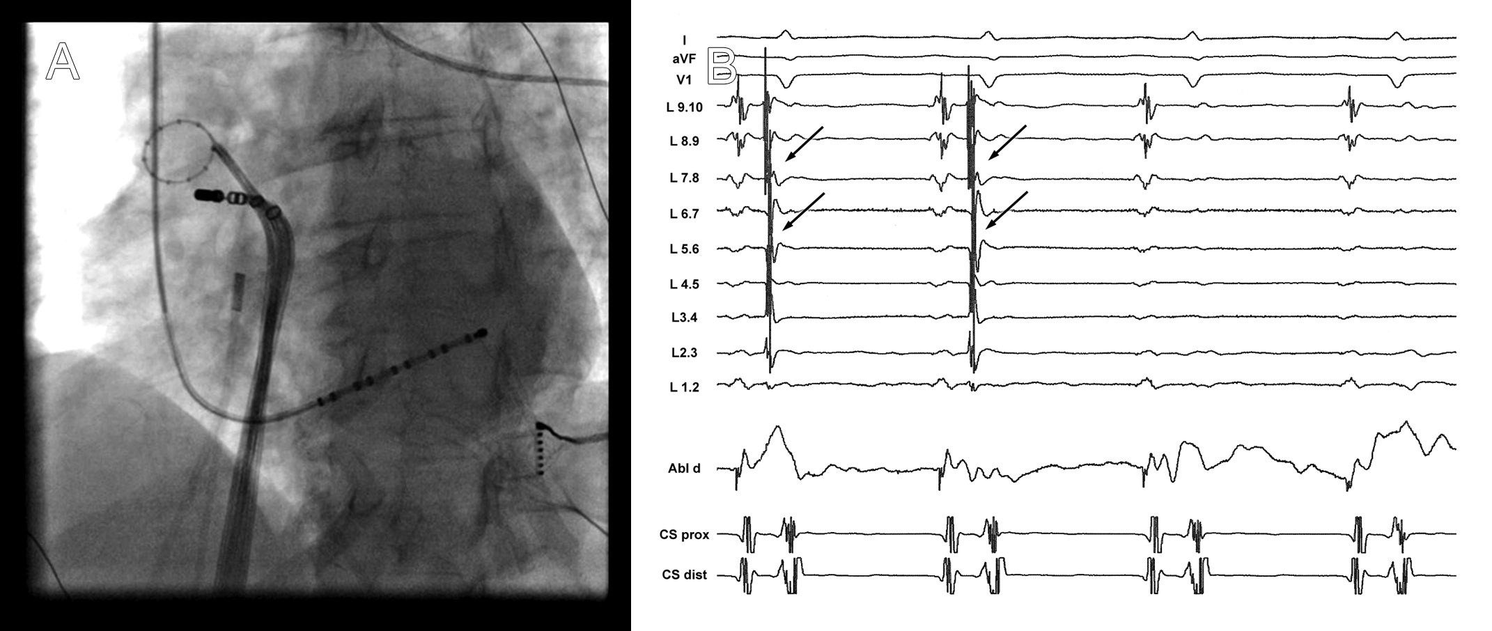 A. Rentgenogram zachycující cirkulární katétr (Lasso) v pravé horní plicní žíle a ablační katétr u jejího ostia. V dolní části obrázku je multipolární katétr zavedený v koronárním sinu. B. Elektrogramy v okamžiku dosažení elektrické izolace plicní žíly. V záznamech z cirkulárního katétru umístěného v plicní žíle je v prvních dvou stazích přítomna elektrická aktivita (šipka), která následně po izolaci vymizí.