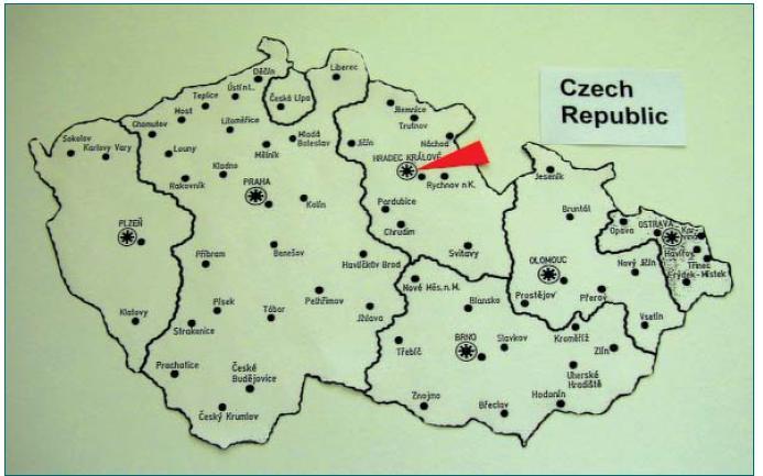 Rozdělení České republiky mezi transplantační centra (poznámka: oblast České Lípy patří k Hradci Králové).