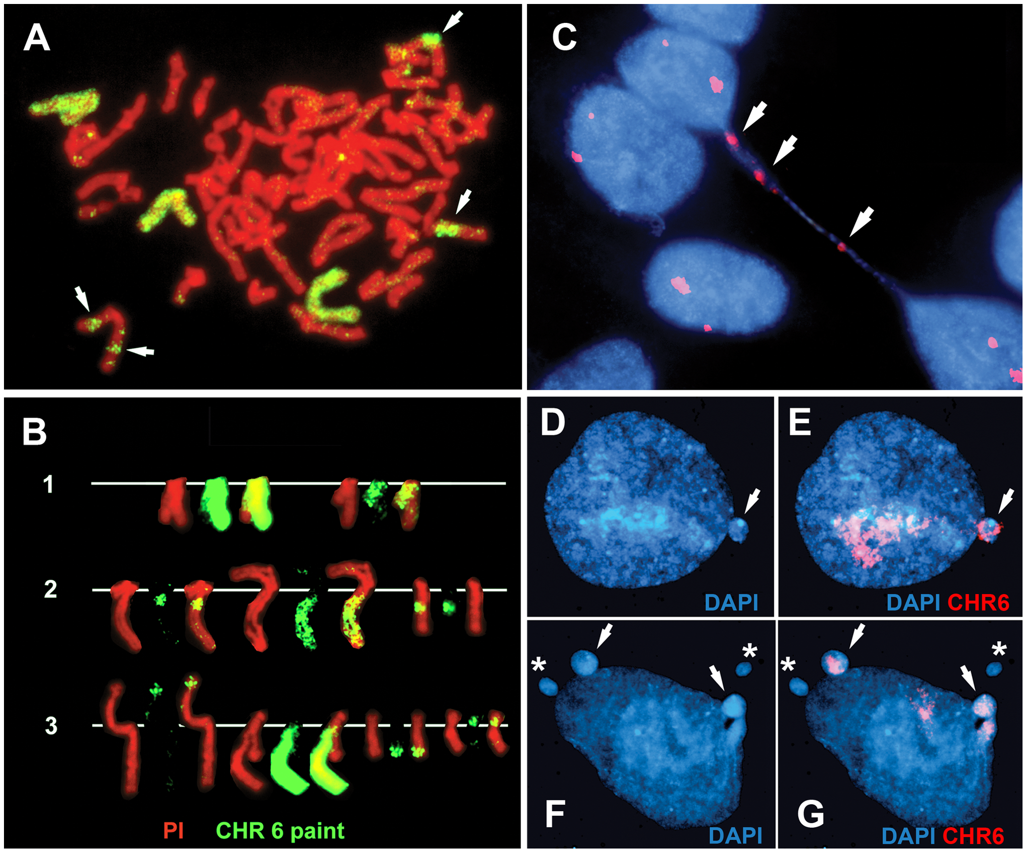 Disruption of <i>ASAR6</i> leads to instability of chromosome 6.