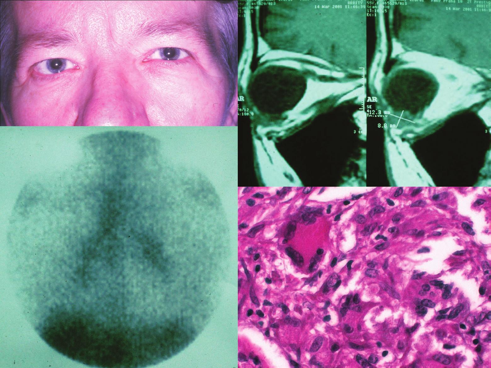 Klinický obraz orbitálního postižení vpravo (a), nález orbitálního tumoru na MR (b), obraz galliového scanu (c) a histologická verifikace orbitální biopsie (d) u pacientky s orbitálním zánětlivým syndromem a intrathorakálním projevem sarkoidózy