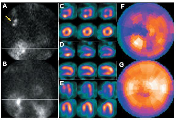 Příčinou nekvalitního záznamu (A) je částečně paravenózní aplikace radiofarmaka. Důsledkem jsou arteficiální změny perfuze – zobrazeno na vybraných tomografických řezech (horní řada C – SA, D – VLA, E - HLA) a polární mapě (F). U opakované studie, kdy byl prodloužen čas záznamu jednotlivých snímků tomografie, jsou nasnímané obrazy dostatečně kvalitní (B) a perfuze myokardu je normální (dolní řada C – SA, D – VLA, E - HLA, G). Známkou paravenózní aplikace je i zobrazení lymfatických uzlin v pravé axile (A – šipka).