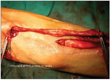 Infikovaná ePTFE protéza av spojky Fig. 2. Infected ePTFE A-V shunt prosthesis