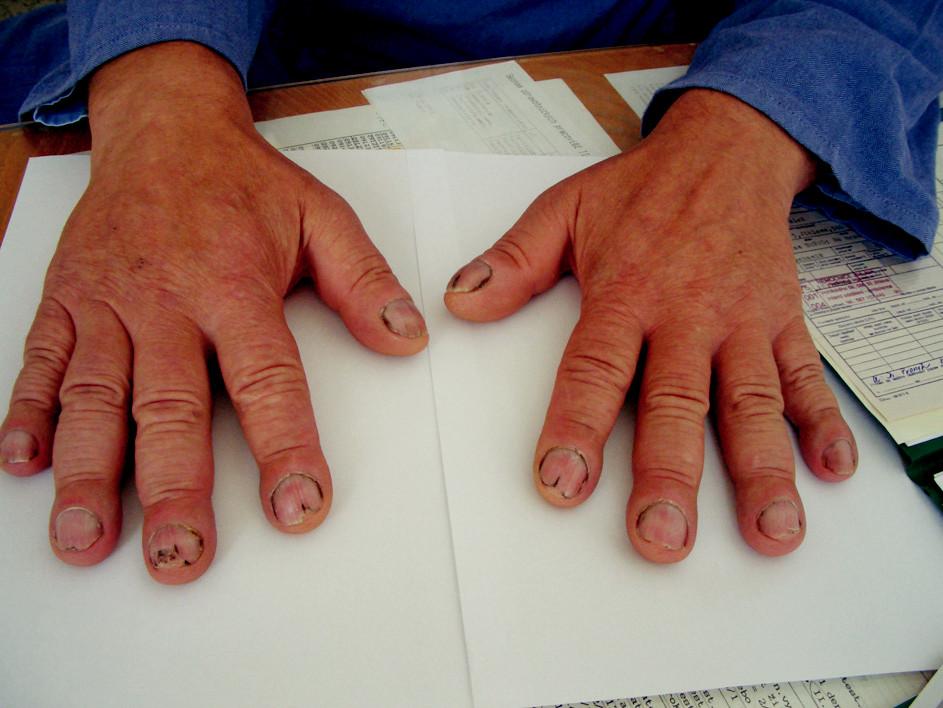 Paličkovité prsty obou rukou.
