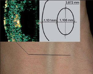 Příklad zjištění hloubek a rozměrů pomocí ultrazvuku