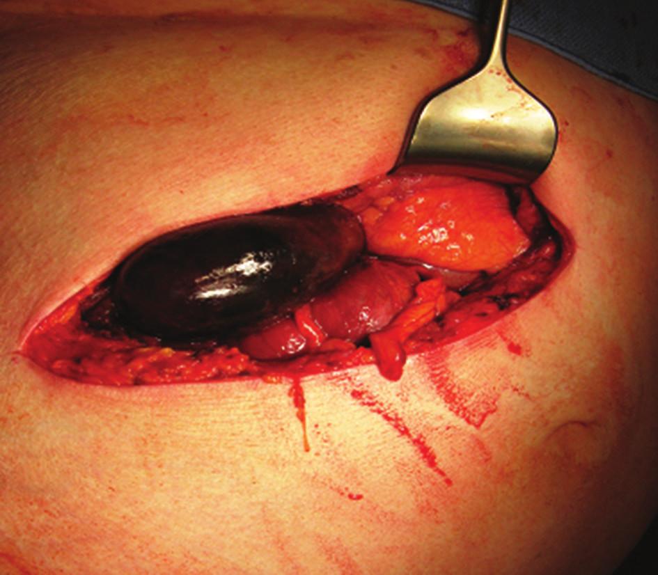 Gangrenózní žlučník po otevření dutiny břišní Fig. 4: Gangrenous gallbladder after opening the abdominal cavity