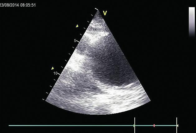 Výrazná dilatace aortálního oblouku Aortální oblouk dilatovaný na 8 cm, zobrazený transjugulárně v TTE.
