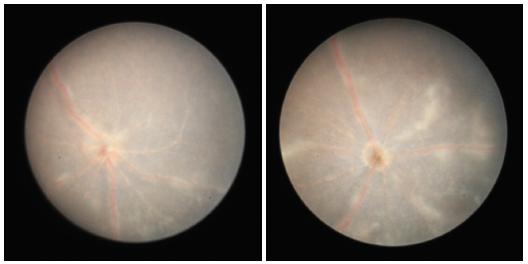 Obr. 9 a 10 Fotografie fundu 35. den po indukci EAU, sítnice s převažující atrofií, granulární i lineární infiltráty ubývají, edém terče zrakového nervu přetrvává